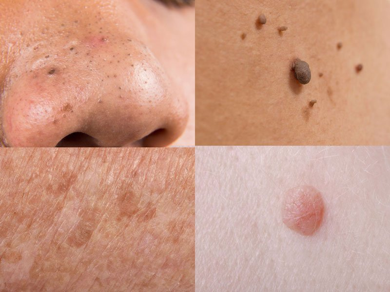 Naturally Cure Age Spots Moles Skin Tags Warts Blackheads